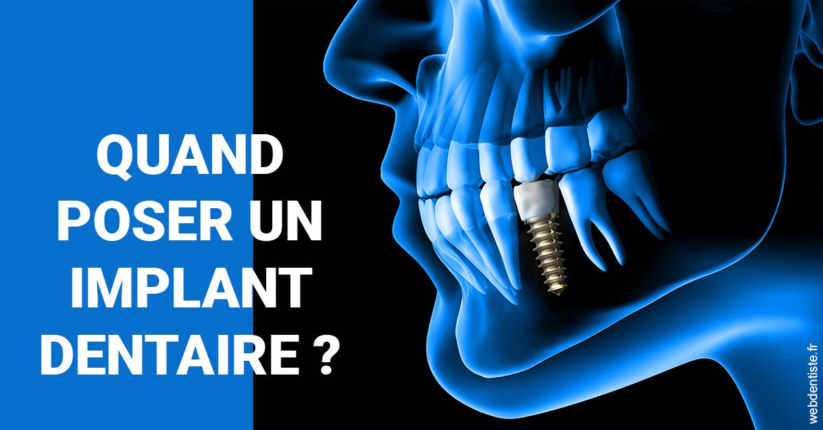 https://dr-feredj-elisabeth.chirurgiens-dentistes.fr/Les implants 1